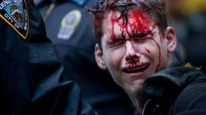 A man who identifed himself as Brendan Watts is seen with blood on his face while surrounded by three police officers in Zuccotti Park on November 17, 2011 in New York City. (Andrew Burton/Getty Images/AFP)