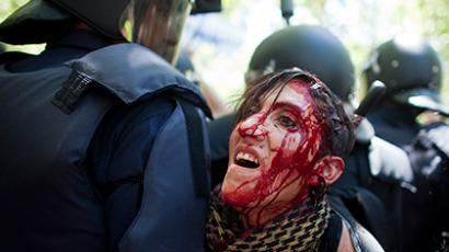 "Blood flows down the face of an injured protester who was injured during clashes between supporters of Spanish coal miners and riot police as they ended a ""Marcha Negra"" (Black March) near the Industry Ministry in Madrid July 11, 2012 (Reuters/Paul Hanna)"