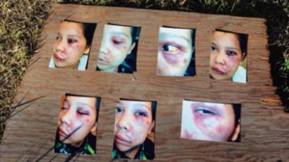Photographs of a 17-year old girl's injuries after a member of the Royal Canadian Mounted Police repeatedly punched herwhile she was handcuffed in British Columbia in 2011.(Photo from hrw.org)