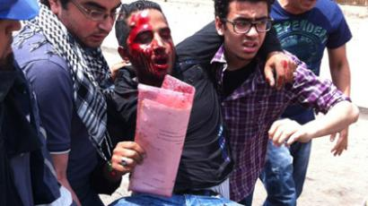 Two dead, 300 injured, 170 arrested: Egypt imposes curfew after Abbasiya violence (PHOTOS, VIDEO)