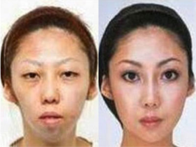 Before and after: Feng's wife spent over $100,000 in plastic surgery to modify her appearance