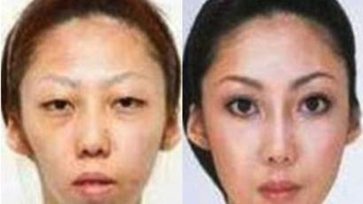 'Eiffel Tower' nosejob: Chinese students turn to plastic surgery to beat other job candidates