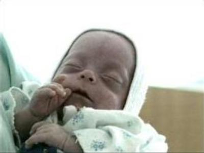 Three months premature baby will live to tell the tale