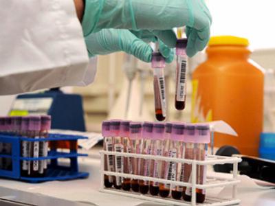 Doping analysing laboratory