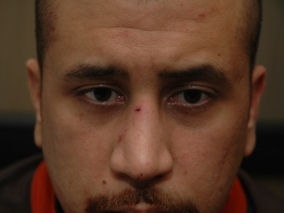DNA tests confirm Martin didn't grip Zimmerman's gun