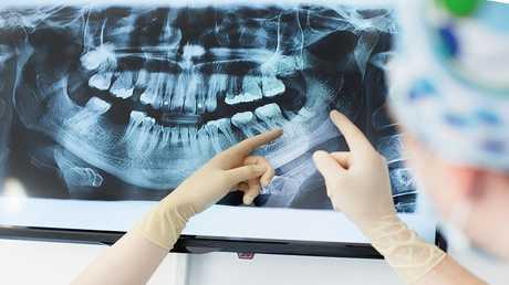 سبب مرض ألزهايمر قد يبدأ من داخل فمك!